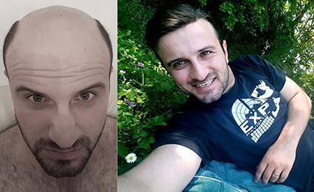 Lordhair Men's Hair System