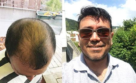 Stock Fine Mono Hair System