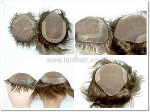 hair duplication