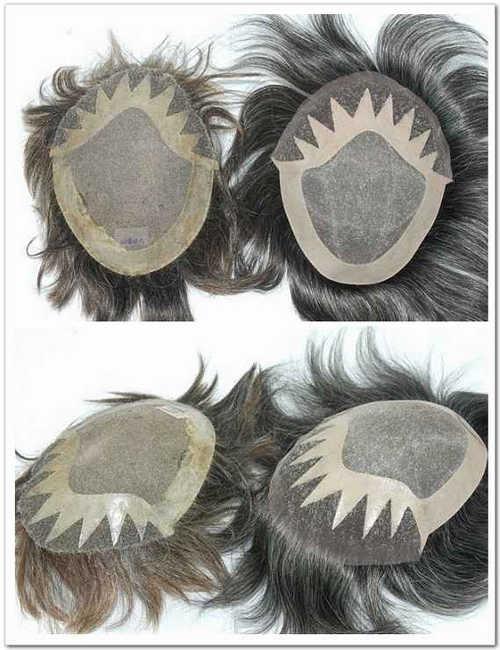 hair duplication